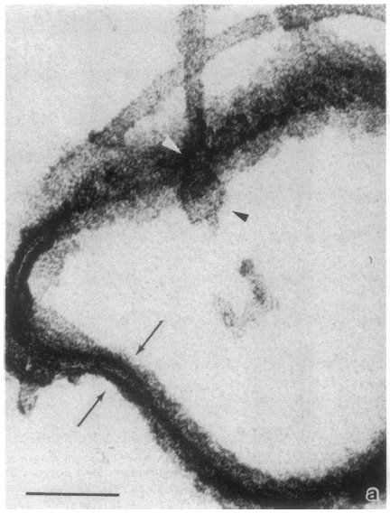visualizing flagellum base by electron microscopy