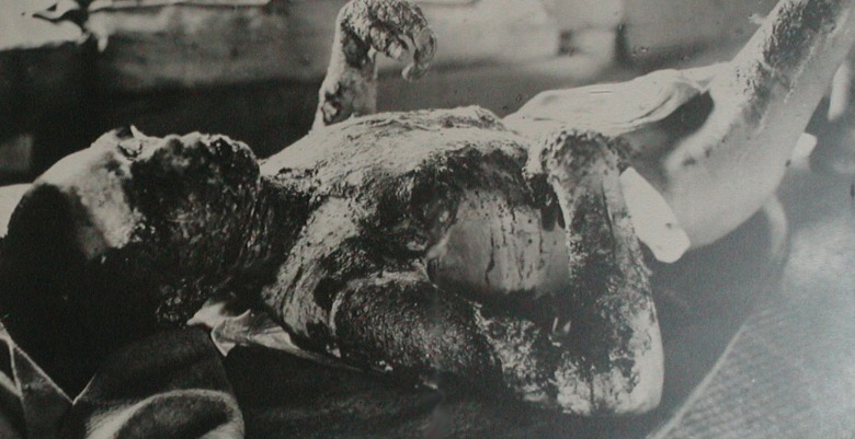 A burned victim of the atomic bomb at Hiroshima