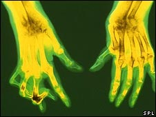 hands distorted by rheumatoid arthritis
