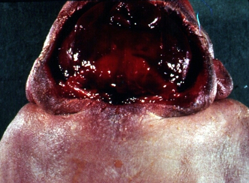 anencephaly back of head